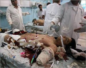 Anak Gaza meregang maut setelah serangan brutal darat, laut, udara pasukan Israel, Januari 2009.